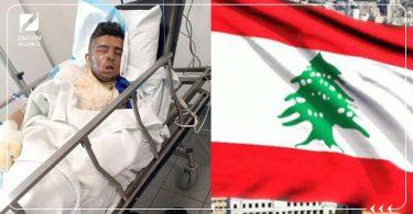 """شبان لبنانيون يضرمون النيران بـ""""لاجئ سوري"""""""